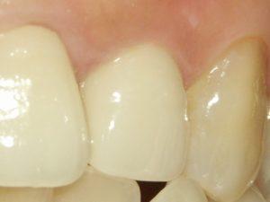 新宿岸本歯科医院セラミック治療2