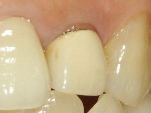 岸本歯科医院セラミック治療1