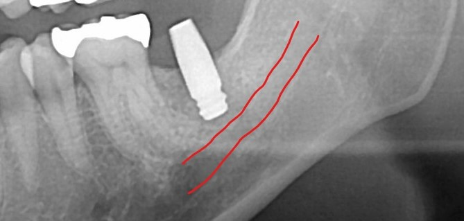下顎ショートタイプインプラント