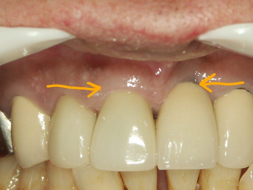 前歯のインプラント2