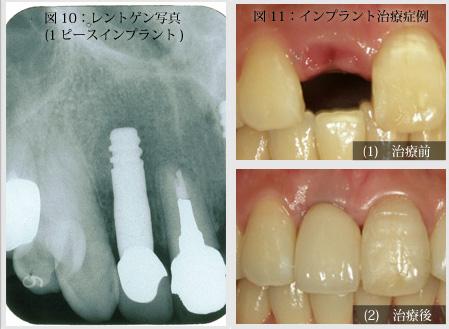 骨吸収インプラント写真1