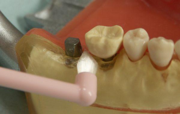 インプラント歯磨き2
