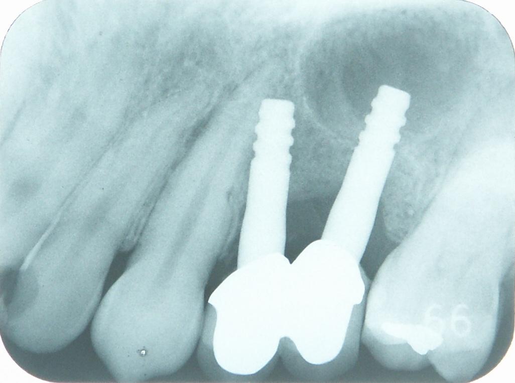 上顎奥歯のインプラント