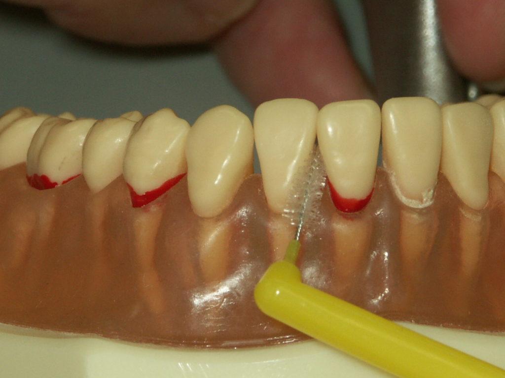 歯間ブラシ 下顎