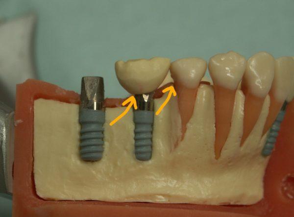 インプラント歯間ブラシ