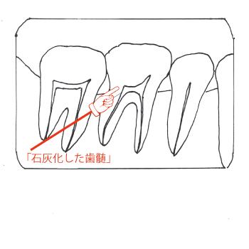 虫歯治療歯髄